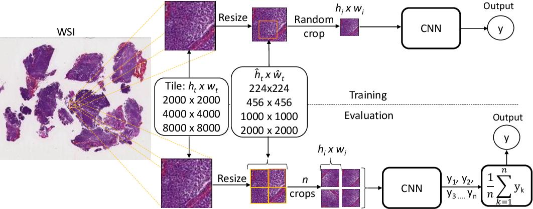 Figure 1 for Multi-Scale Input Strategies for Medulloblastoma Tumor Classification using Deep Transfer Learning