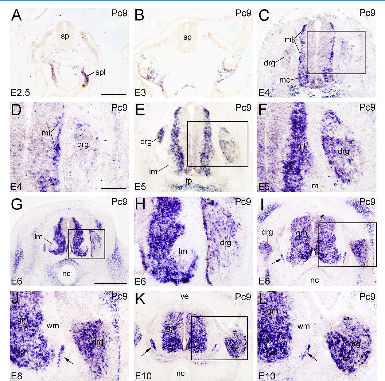 Figure 4. Expression of Pcdh9 in transverse sections of the developing spinal cord at the lumbar level from 2.5 days of incubation (E2.5) to E10 (indicated in each panel). A–L: All panels show in situ hybridization results for Pcdh9 (Pc9). The arrows in I–L point to the cap cells at the positions where the ventral roots grow out. The areas boxed in C, E, G, I, and K are shown at a higher magnification in D, F, H, J, and L, respectively. Abbreviations: drg, dorsal root ganglion; fp, floor plate; gm, gray matter; lm, lateral motor column; mc, motor column; ml, mantle layer; nc, notochord; sp, spinal cord; spl, splanchnopleure; ve, vertebral arch; wm, white matter. Scale bar ¼ 100 lm in D (also applies to F,H); 200 lm in A (also applies to B,C,E,J,L); 500 lm in G (also applies to I,K). [Color figure can be viewed in the online issue, which is available at wileyonlinelibrary.com.]