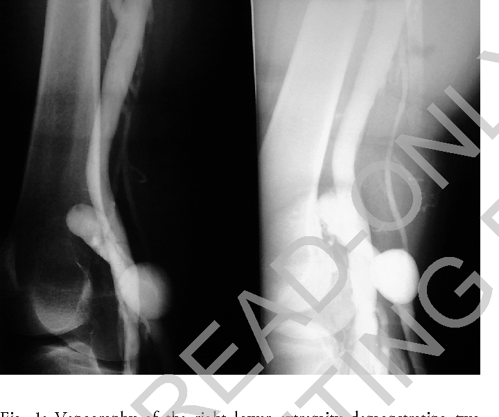 Figure 1 From Double Primary Venous Aneurysm Of The Small Saphenous