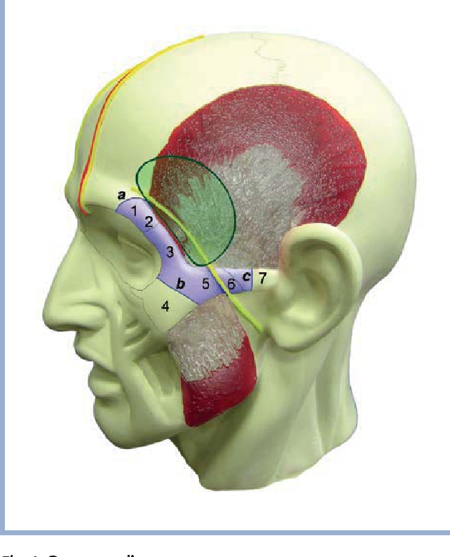 Figure 4 From Orbitozygomatic Approaches To The Skull Base