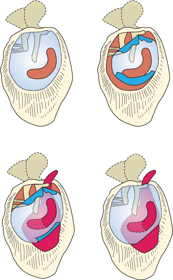 Figure 1 from Surgical anatomy and pathology of the middle ear ...