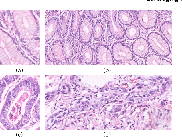 Figure 3 for A New Gastric Histopathology Subsize Image Database (GasHisSDB) for Classification Algorithm Test: from Linear Regression to Visual Transformer