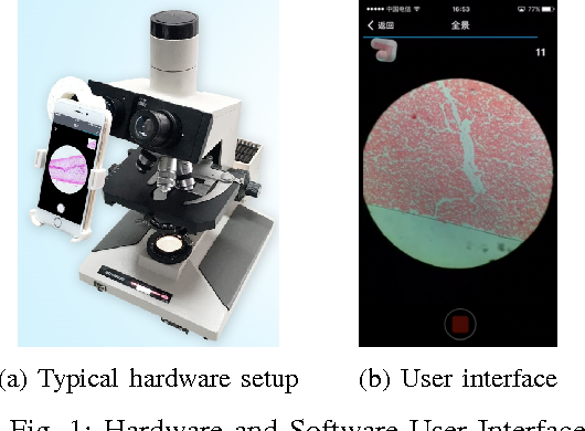 Figure 1 for sWSI: A Low-cost and Commercial-quality Whole Slide Imaging System on Android and iOS Smartphones