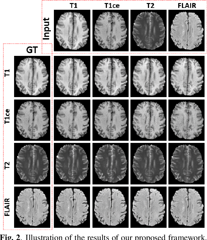 Figure 3 for A Unified Conditional Disentanglement Framework for Multimodal Brain MR Image Translation