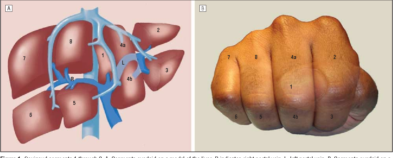Figure 1 From A Handy Tool To Teach Segmental Liver Anatomy To
