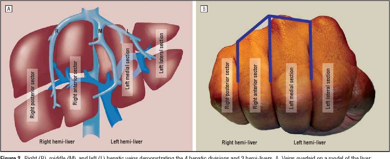 Figure 2 from A handy tool to teach segmental liver anatomy to ...