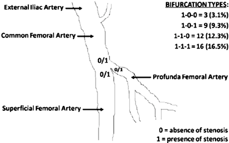 Is Common Femoral Artery Stenosis Still A Surgical Disease