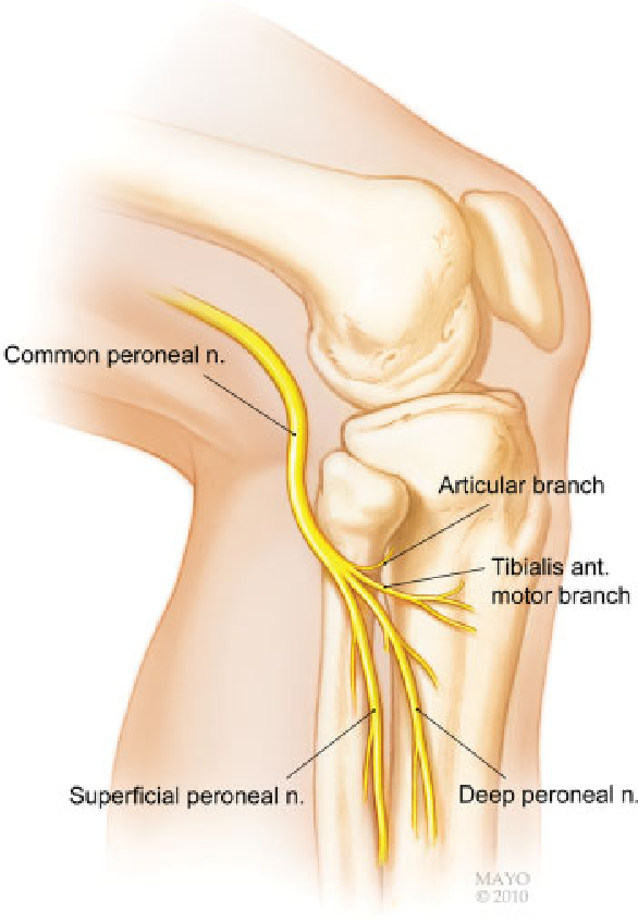 Knee Nerves Diagram Including Product Wiring Diagrams