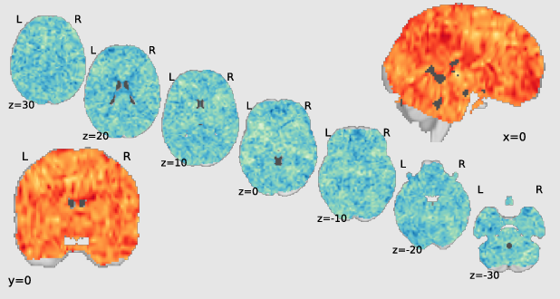 Figure 1 for Sturm: Sparse Tubal-Regularized Multilinear Regression for fMRI