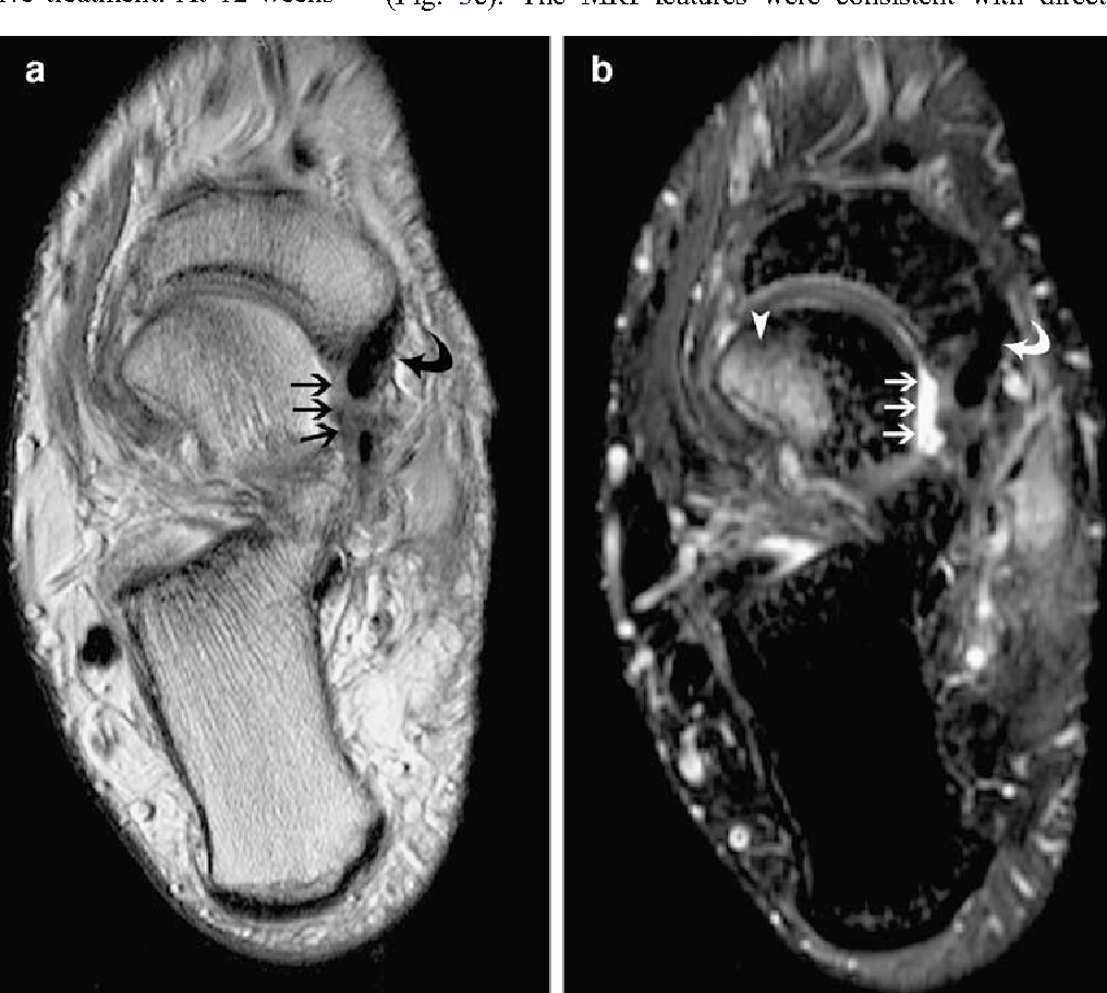 MRI of rupture of the spring ligament complex with talo-cuboid ...