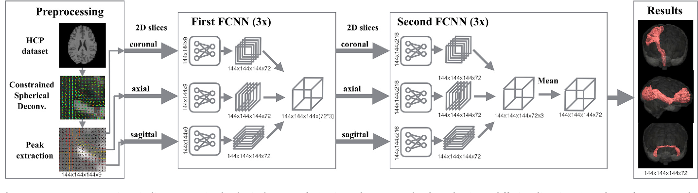 Figure 1 for TractSeg - Fast and accurate white matter tract segmentation