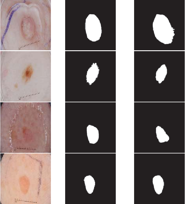 Figure 3 for FocusNet: An attention-based Fully Convolutional Network for Medical Image Segmentation