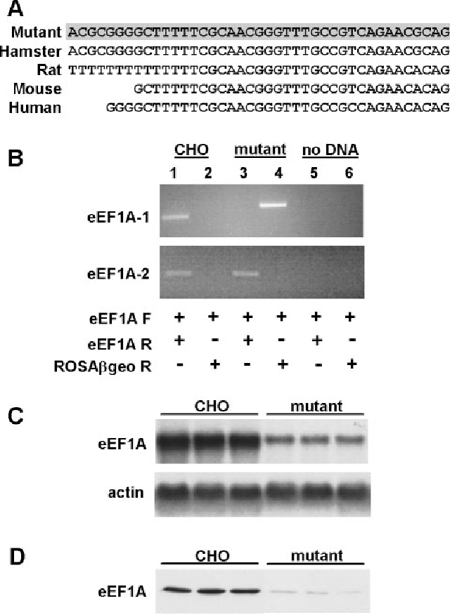 A Critical Role For Eukaryotic Elongation Factor 1a 1 In Lipotoxic