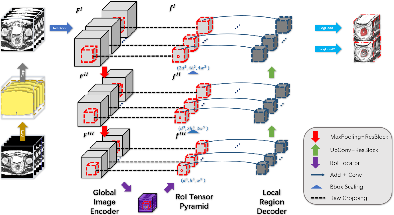 Figure 3 for 3D RoI-aware U-Net for Accurate and Efficient Colorectal Tumor Segmentation