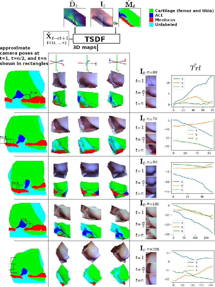 Figure 3 for 3D Semantic Mapping from Arthroscopy using Out-of-distribution Pose and Depth and In-distribution Segmentation Training