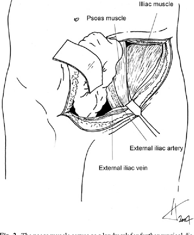 Anatomical Considerations Of The Internal Iliac Artery In