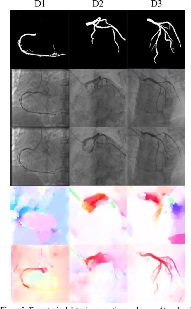 Figure 2 for Flow Based Self-supervised Pixel Embedding for Image Segmentation