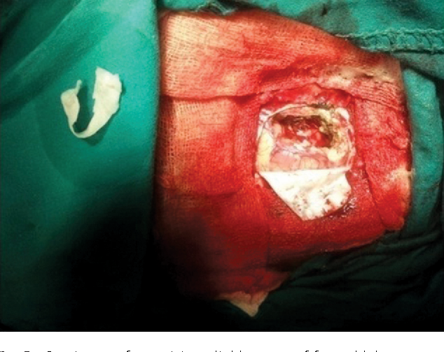 Fig. 2 Craniotomy for excision glioblastoma of frontal lobe.