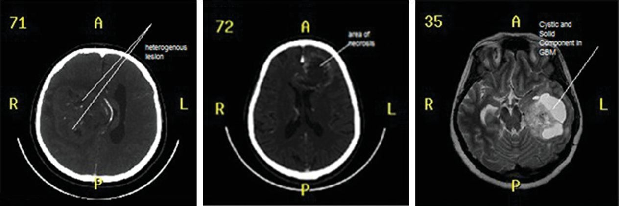 Fig. 4 (A–C) Various preoperative glioblastoma images, (C) preoperative MRI showing a glioblastoma. MRI, magnetic resonance imaging.