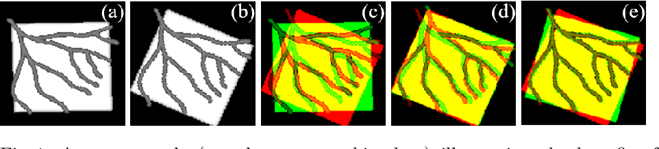 Figure 1 for Image-and-Spatial Transformer Networks for Structure-Guided Image Registration
