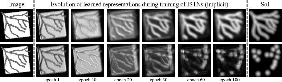 Figure 4 for Image-and-Spatial Transformer Networks for Structure-Guided Image Registration