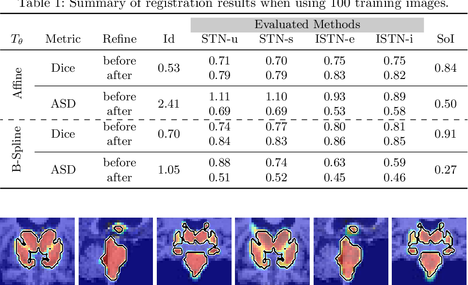Figure 2 for Image-and-Spatial Transformer Networks for Structure-Guided Image Registration