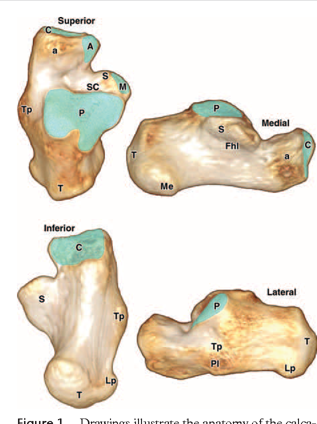 Figure 1 from Multidetector CT evaluation of calcaneal fractures ...