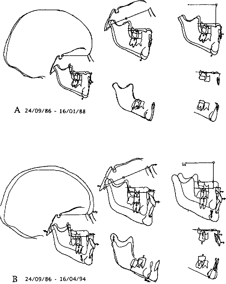 Figure 15 From Maxillary Development Revisited Relevance To The