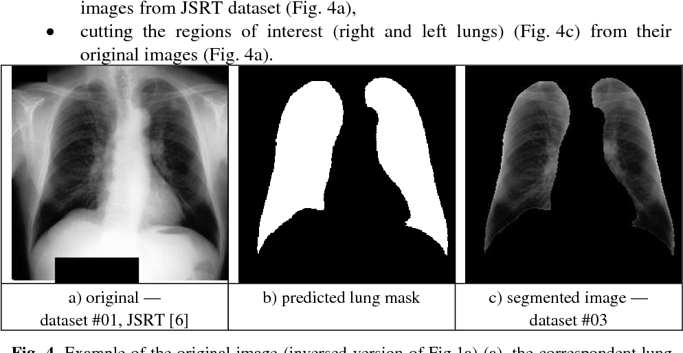 Figure 4 for Deep Learning with Lung Segmentation and Bone Shadow Exclusion Techniques for Chest X-Ray Analysis of Lung Cancer