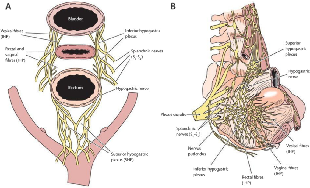 Lower urinary tract dysfunction after nerve-sparing radical ...