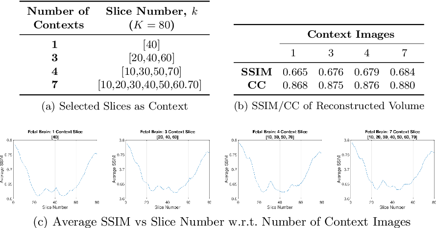 Figure 4 for Flexible Conditional Image Generation of Missing Data with Learned Mental Maps