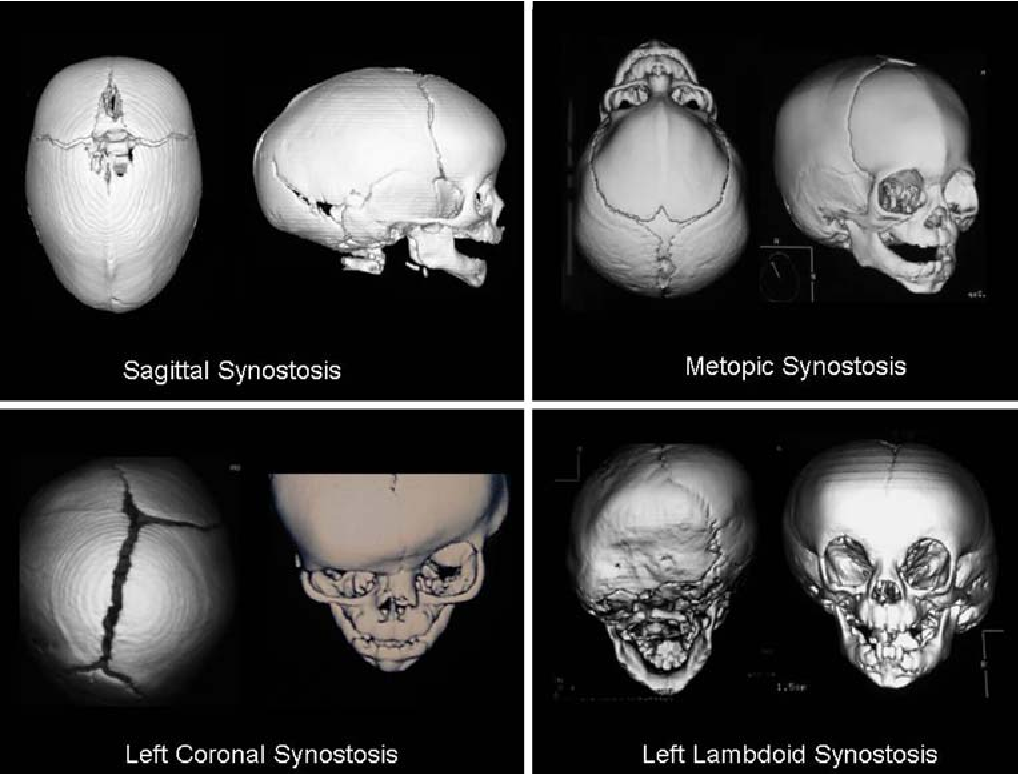 Get the facts on craniofacial anomalies such as craniosynostosis Apert Syndrome