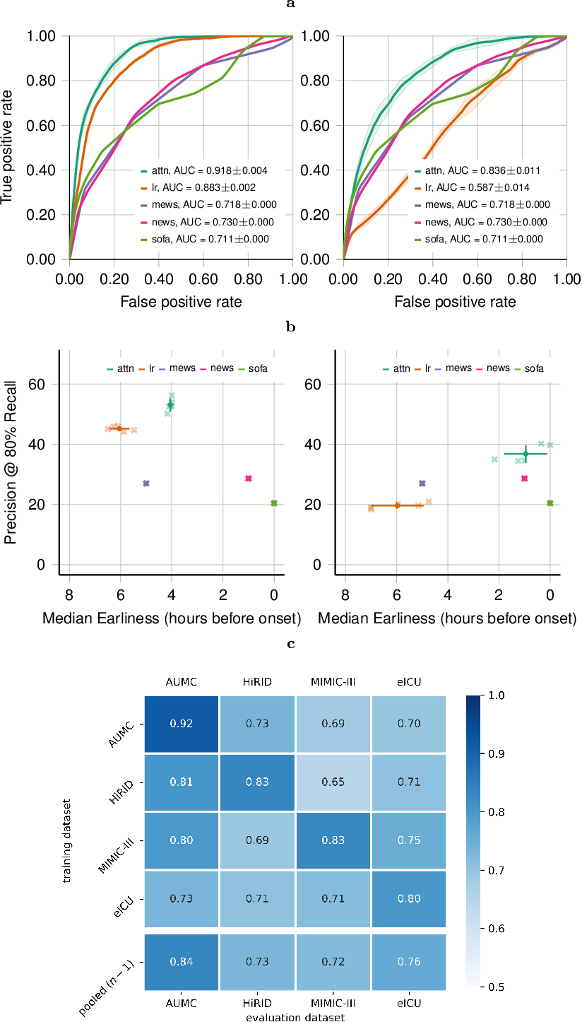Figure 4 for Predicting sepsis in multi-site, multi-national intensive care cohorts using deep learning