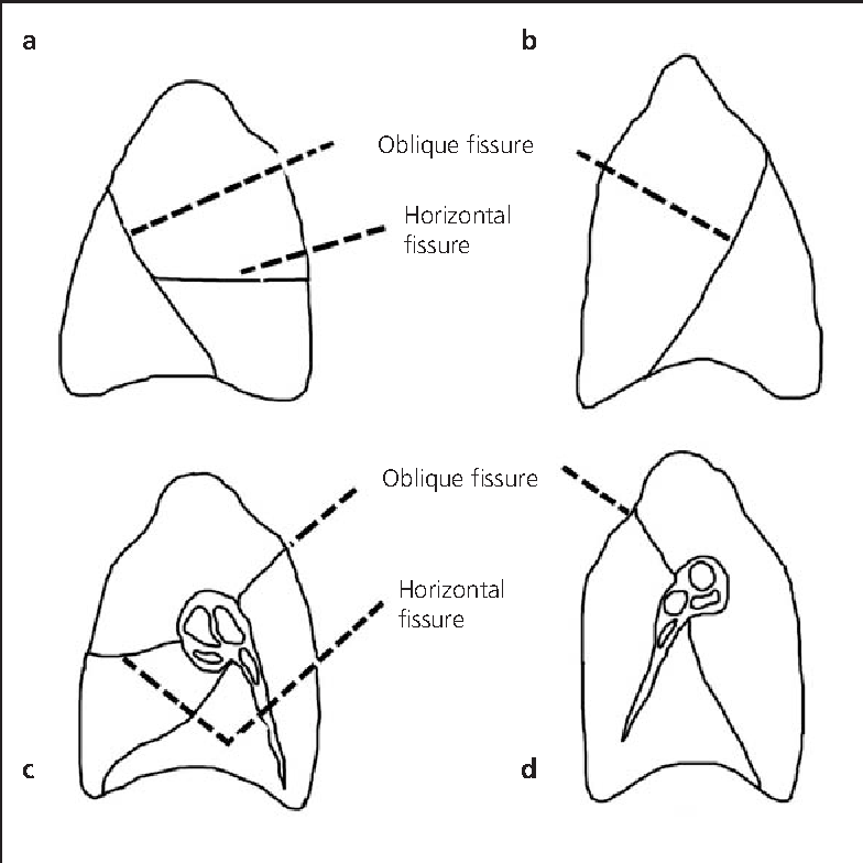 Lung lobes and fissures : a morphological study - Semantic Scholar