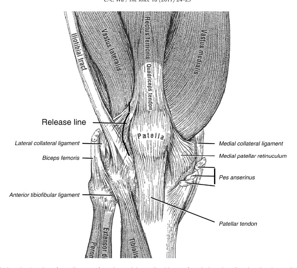 Fantastisch Laterale Retinaculum Patellar Zeitgenössisch - Anatomie ...
