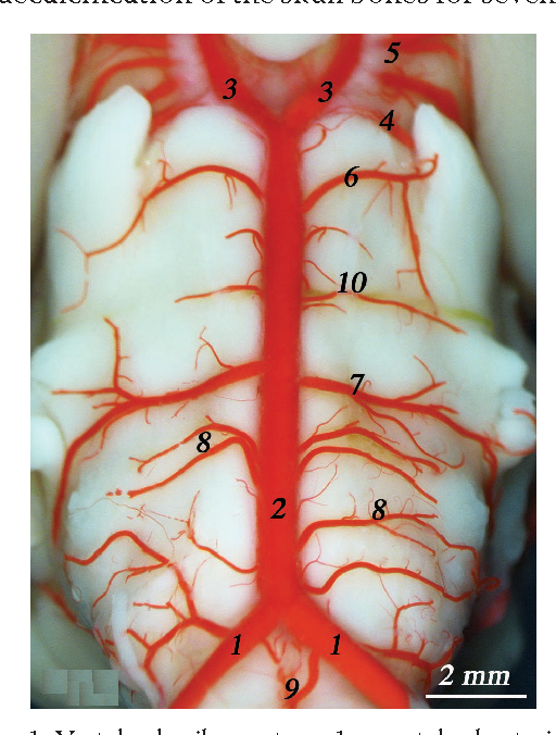 Analysis of morphological variation of the internal ophthalmic ...