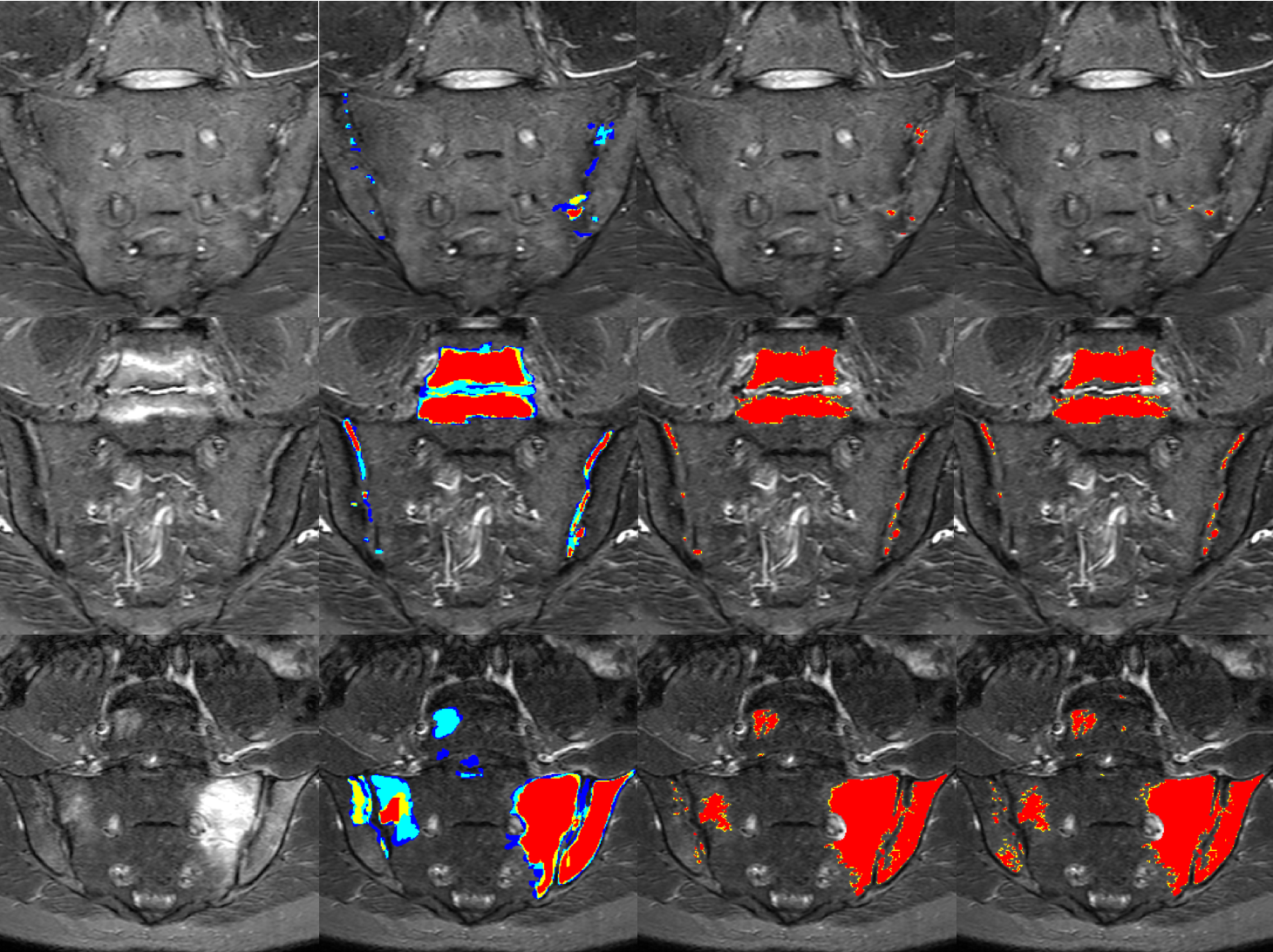 Figure 3 for Towards Deep Learning-assisted Quantification of Inflammation in Spondyloarthritis: Intensity-based Lesion Segmentation