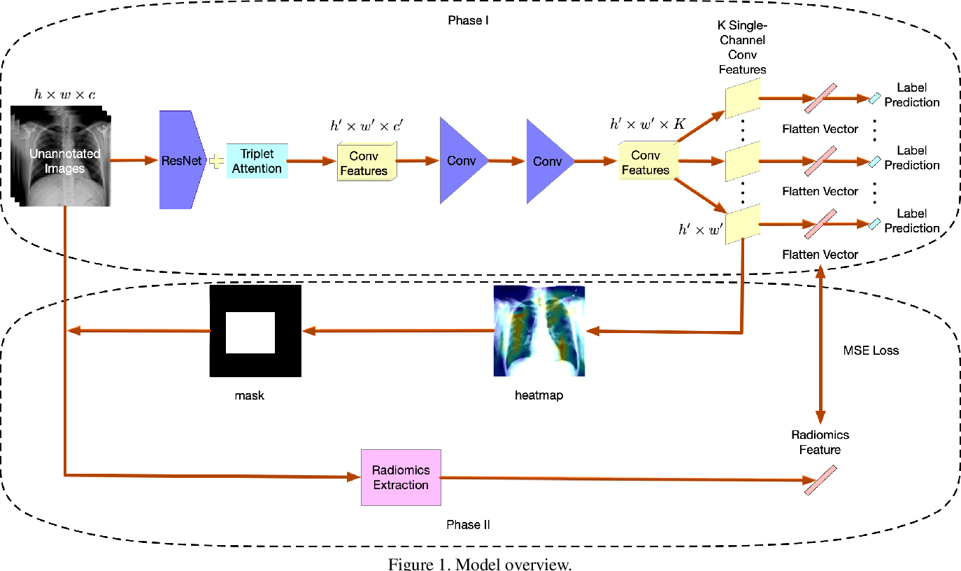Figure 1 for Using Radiomics as Prior Knowledge for Abnormality Classification and Localization in Chest X-rays