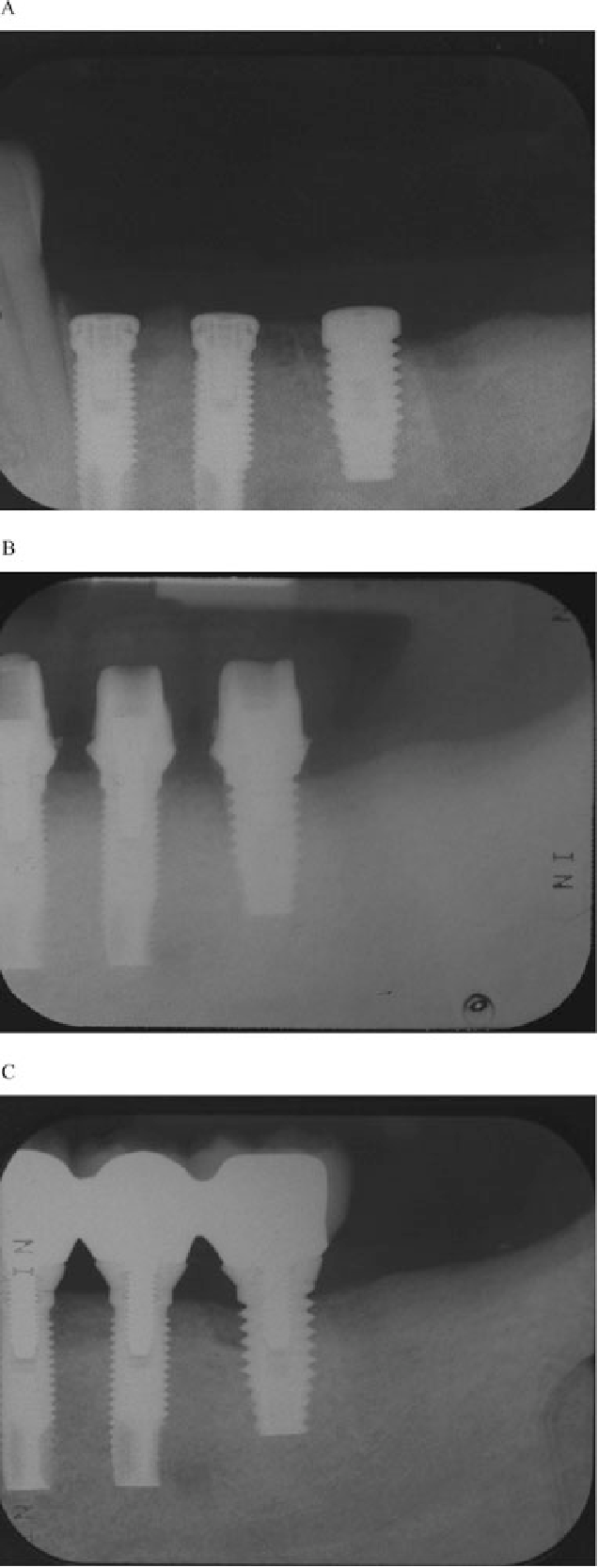 Figure 1 Radiographic aspect of ailing implants. (A) Postoperative radiograph at the time of implant placement. No peri-implant bone loss is present. (B) Postoperative radiograph at the time of abutment connection. No peri-implant bone loss is present. (C) Postoperative radiograph at 5 years. Peri-implant bone loss is extending beyond the third thread of the implant replacing tooth number 19.