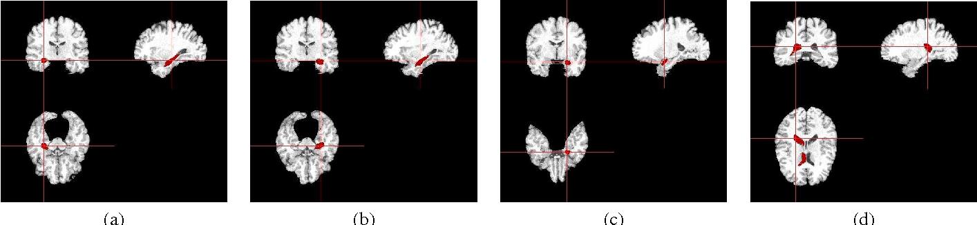 Figure 3 for Multiple Kernel Learning in the Primal for Multi-modal Alzheimer's Disease Classification
