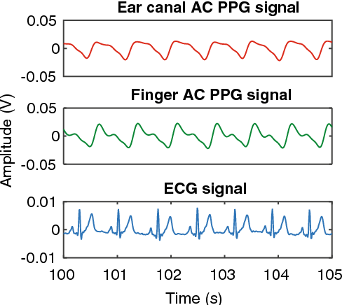 In vivo investigation of ear canal pulse oximetry during hypothermia 5 the infrared ac ppg signals acquired from the ear canal and the finger ccuart Images