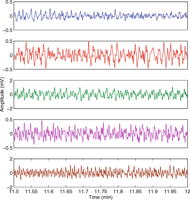 In vivo investigation of ear canal pulse oximetry during hypothermia fig 10 red ppg signals acquired from the fingers of the volunteers in whom accurate ccuart Images
