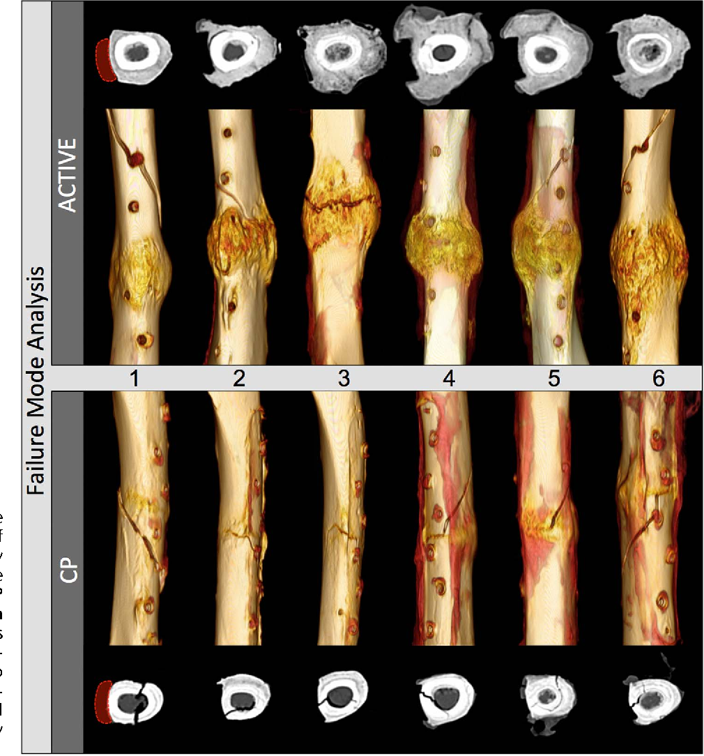 PDF] Dynamic Stabilization of Simple Fractures With Active Plates