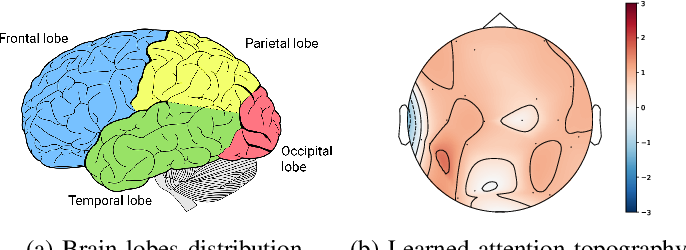 Figure 4 for Adversarial Representation Learning for Robust Patient-Independent Epileptic Seizure Detection