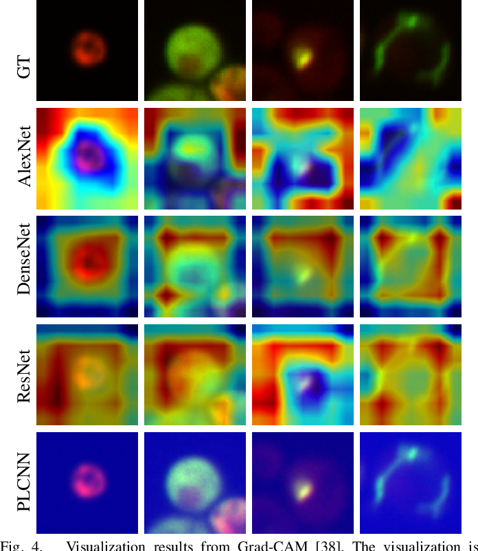 Figure 4 for Deep localization of protein structures in fluorescence microscopy images