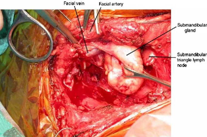 The advantages of submandibular gland resection in anterior ...