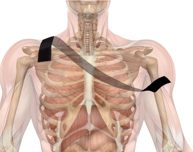 Dynamic brace is a good option to treat first anterior shoulder ...