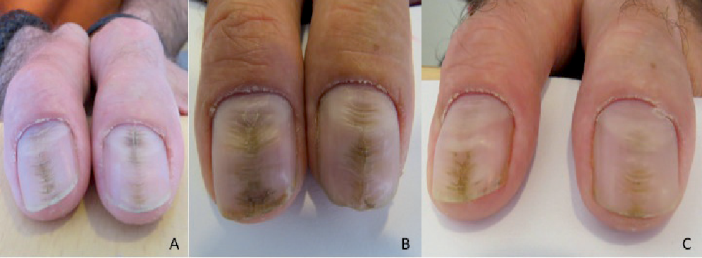 Can median nail dystrophy be an adverse effect of alitretinoin ...