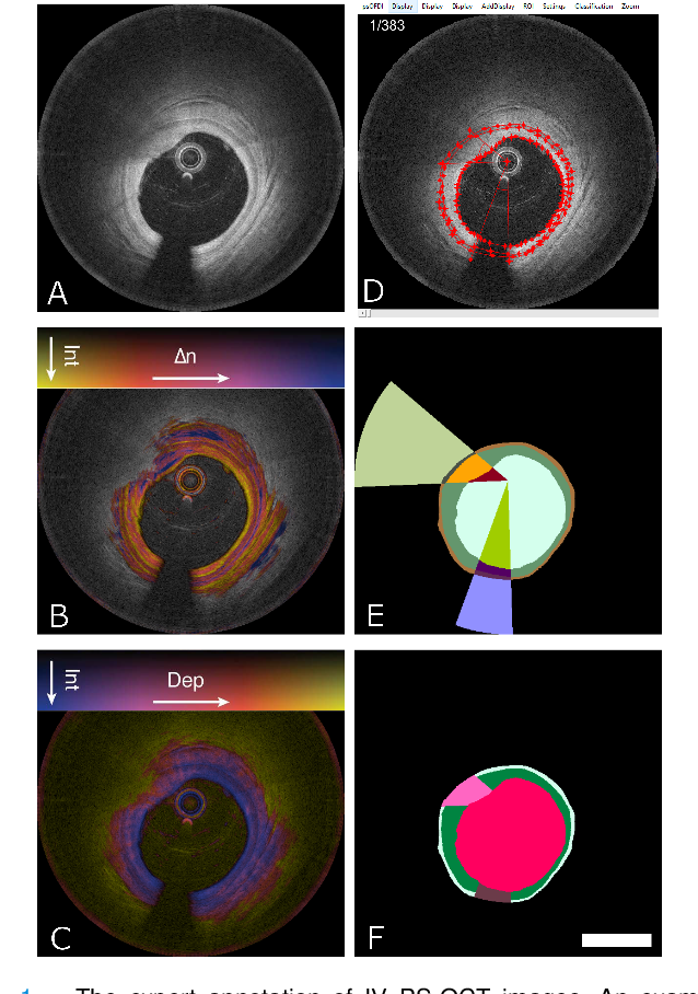 Figure 1 for Segmentation of Anatomical Layers and Artifacts in Intravascular Polarization Sensitive Optical Coherence Tomography Using Attending Physician and Boundary Cardinality Lost Terms