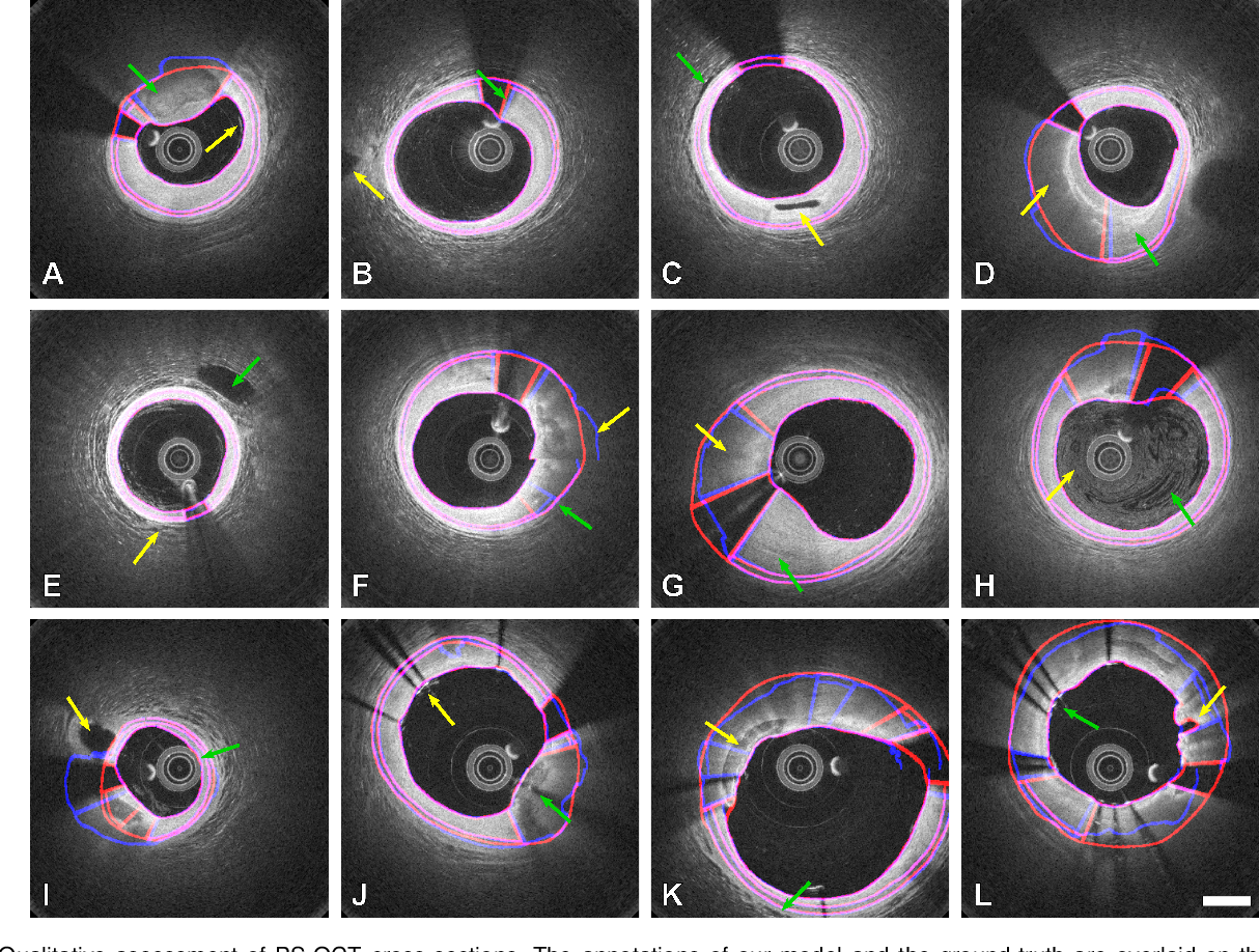 Figure 4 for Segmentation of Anatomical Layers and Artifacts in Intravascular Polarization Sensitive Optical Coherence Tomography Using Attending Physician and Boundary Cardinality Lost Terms